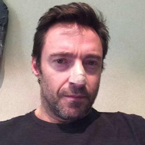 rs_600x600-131121132433-600-hugh-jackman-cancer-instagram.ls.112113_copy
